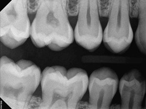 low dose digital x ray