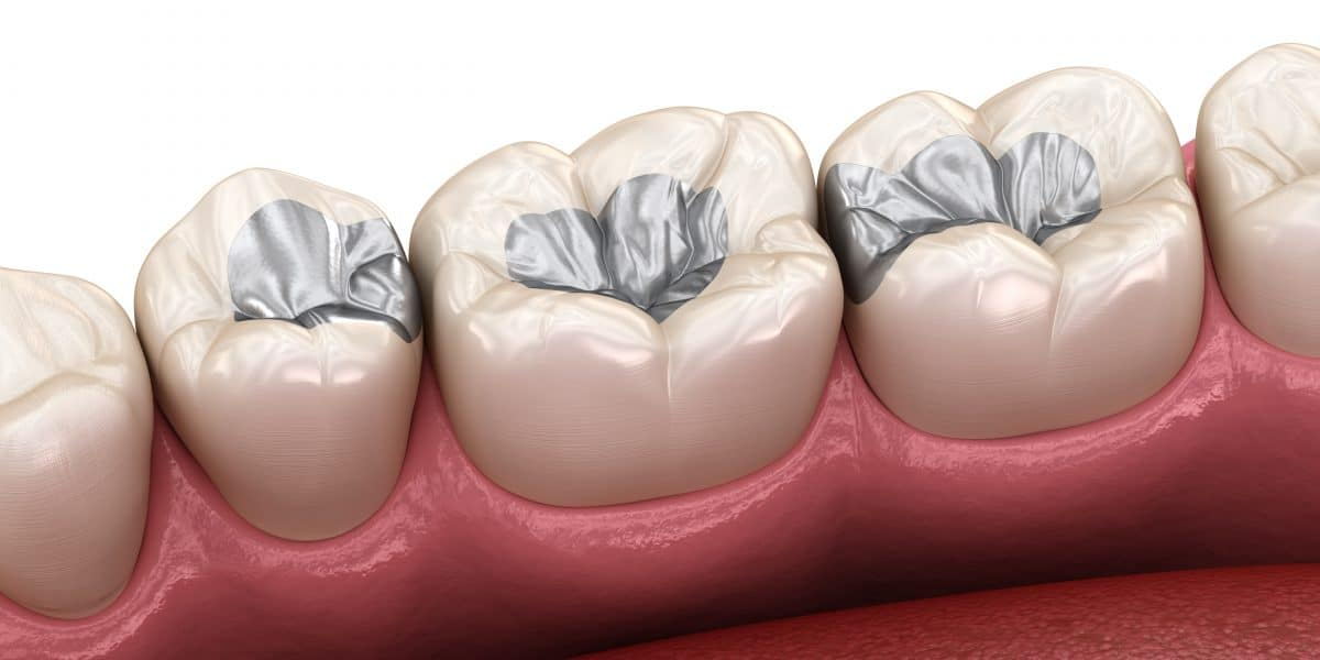 Animation depiction of teeth with dental fillings
