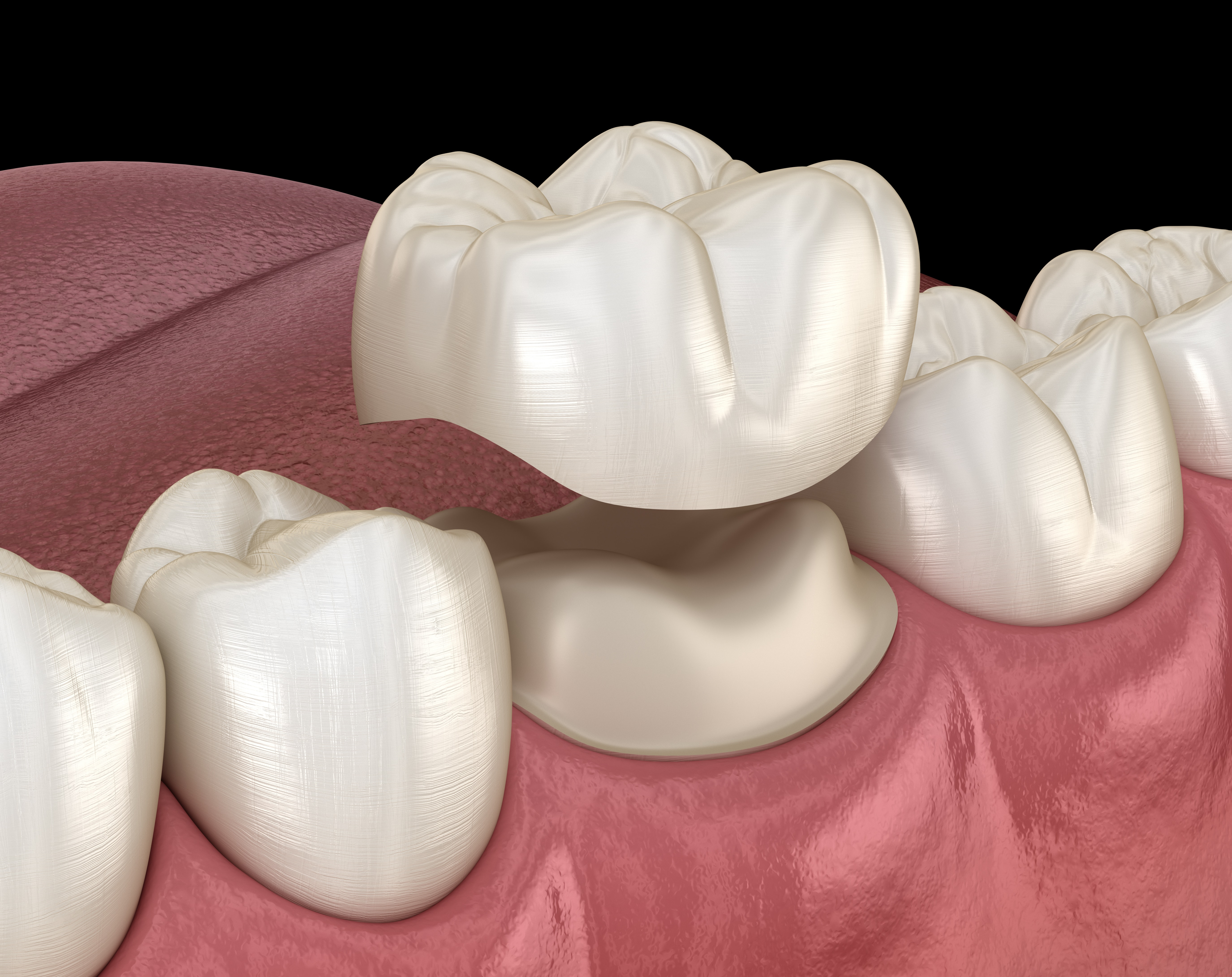 Preparated molar tooth for dental crown placement. Medically accurate 3D illustration