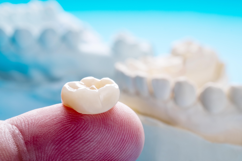 Single teeth crown and bridge equipment model express fix restoration.