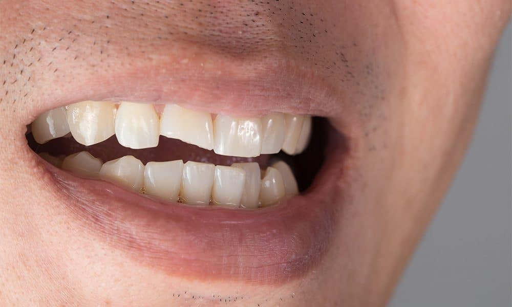 When Should You See a Dentist for a Broken Tooth