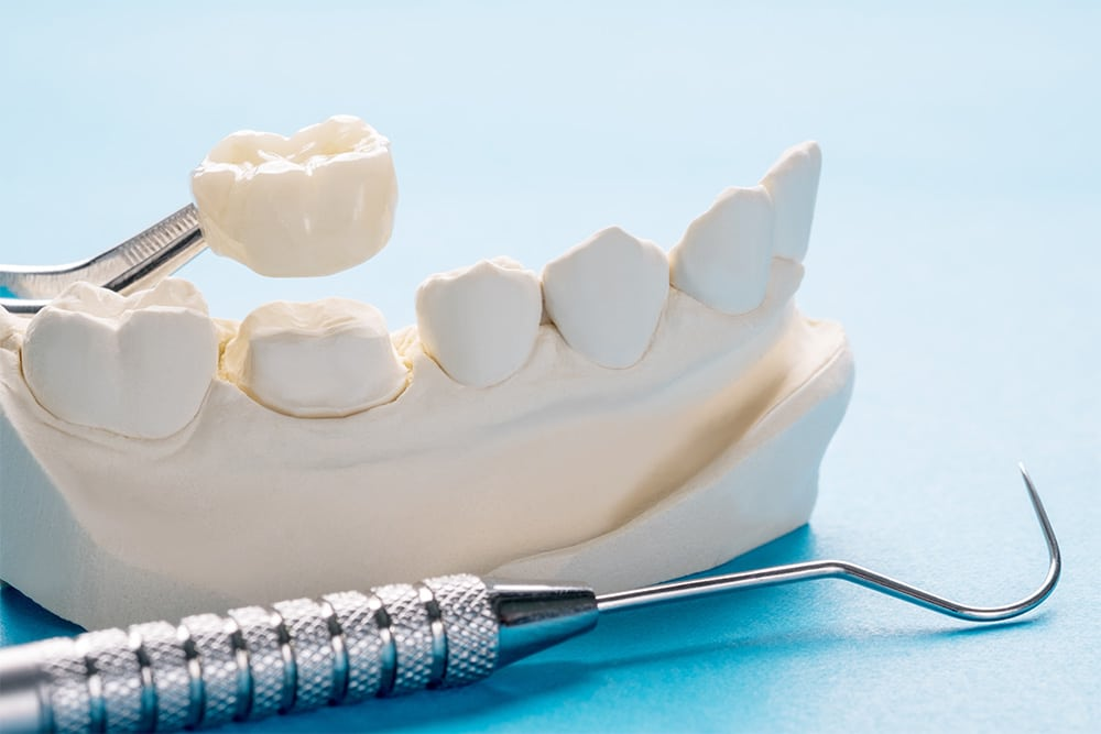 difference between porcelain and ceramic crown