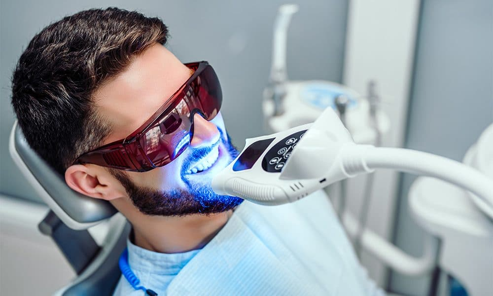 how often you should professionally whiten teeth