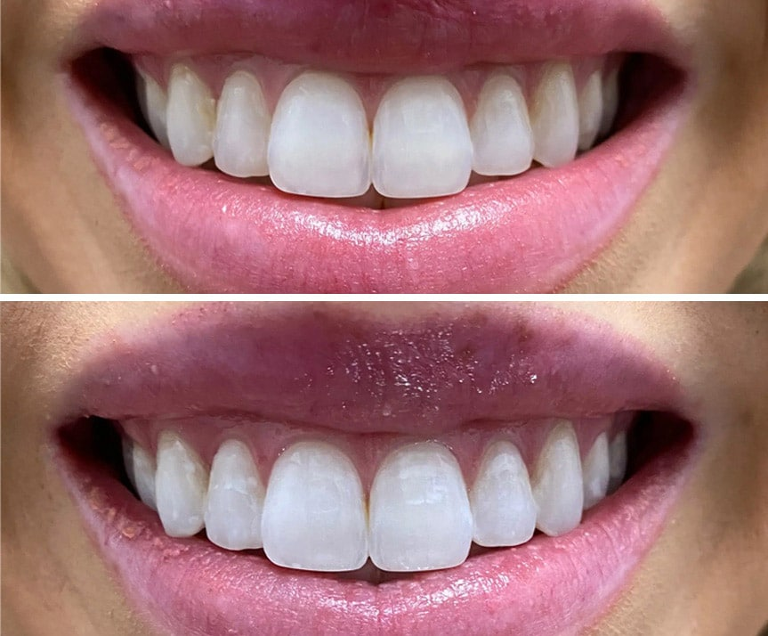 teeth whitening lakeland fl