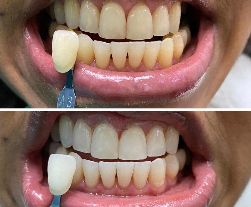 teeth whitening B&A