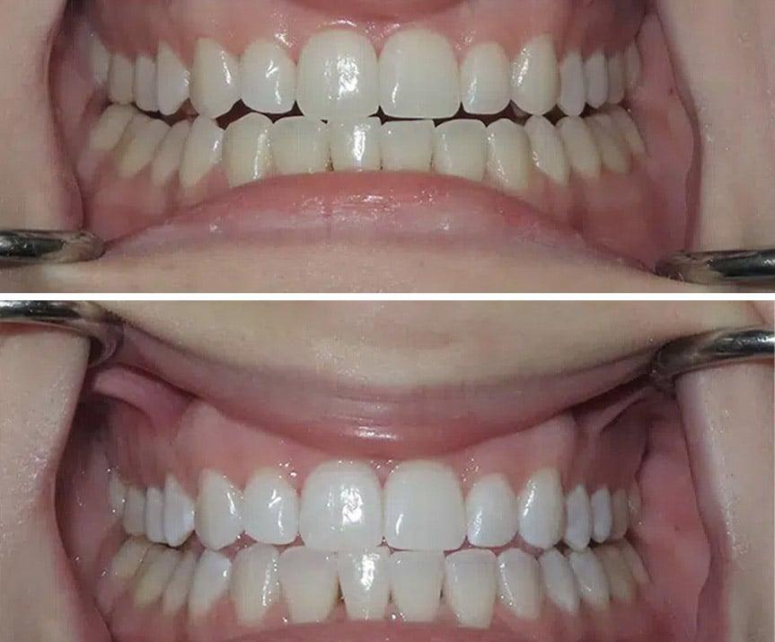 teeth whitening kawveh nofallah
